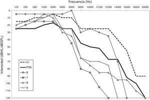 Audiometría de los sujetos 6, 7, 8 y 9 comparados con la mediana (m) y el percentil 95 (P95) para el grupo de edad de 30-39 años.