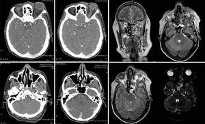 Tomografía axial computarizada y resonancia magnética de cráneo.