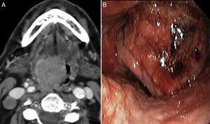 A) Tomografía computarizada. B) Imagen macroscópica de la tumoración laríngea.