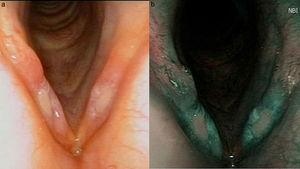 Fiberendoscopic image with white light (a) and NBI (b). Plain background ulcers in the membranous portion of both vocal folds. Narrow Band Image (NBI) view shows the absence of vascularization in these ulcerated areas, with thickened vessels in the surrounding mucosa.