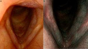 Pictures of the larynx with white light (a) and NBI after the resolution of the process (b). Full recovery of the mucosa with white Light (a) and normal NBI pattern (b).