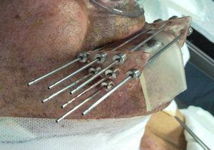 Implante de 7 agujas con bolus.