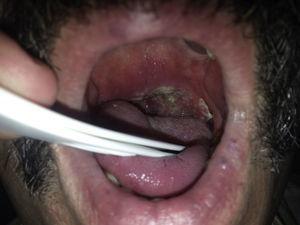 Carcinoma de orofaringe secundario a virus del papiloma.