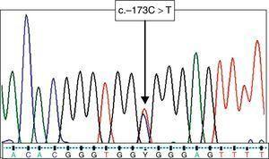 Electroferograma del fragmento de DIAPH3 con la alteración c.-173C>T en la región reguladora.