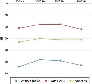 Audiometric gain with BAHA – paired sample t-test (p<0.05).