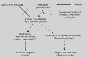 Posible mecanismo de acción de la toxina botulínica tipo A en el síndrome del primer mordisco8.