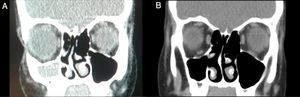 Coronal CT (A) preoperative and (B) 6 months after surgery. CT showed a permeable right maxillary antrostomy and well aerated right maxillary sinus.