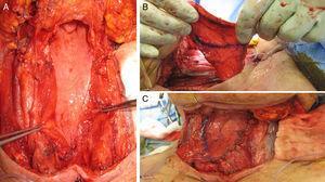 Utilidad del colgajo supraclavicular en isla para defecto hipofaríngeo tras faringectomía parcial, laringectomía total, vaciamiento bilateral. A) Defecto hipofaríngeo con remanente insuficiente para un cierre primario. B) Elevación del colgajo supraclavicular y tunelización por debajo de la piel cervical (visión craneal). C) Aspecto postoperatorio inmediato tras la reconstrucción (visión caudal).