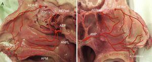 La red vascular que irriga la pared nasal lateral (A) y el tabique nasal (B).AEAnt: arteria etmoidal anterior; AEP: arteria esfenopalatina; AEPost: arteria etmoidal posterior; ANP: arteria nasal posterior; ANPL: arteria nasal posterolateral; APM: arteria palatina mayor.