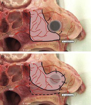Colgajo pediculado de la arteria etmoidal anterior. A) Incisiones y disección del colgajo. B) Rotación del colgajo para cubrir el defecto.AEAnt: arteria etmoidal anterior; AEPost: arteria etmoidal posterior; ANP: arteria nasal posterior.