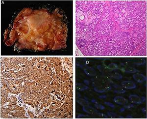Estudio patológico: A) Imagen macroscópica del tumor; B) Tinción H&E. Arquitectura polilobulada con patrón microcístico; C) Tinción citoplasmática de mamaglobina; D) FISH usando sonda de color dual para marcaje de ruptura y reordenamiento de LSI ETV6 (12p13).