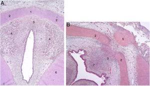 Secciones transversales de un feto de 11 semanas (hematoxilina-eosina) cerca del plano glótico (A) y del hueso hioides (B). 1. Lámina intermedia del cartílago tiroides; 2. lámina lateral del cartílago tiroides; 3. proceso en zona media; 4. fibras musculares del plano glótico; 5. hueso hioides; 6. cartílago cricoides; 7. futuro espacio preepiglótico (reproducción de imágenes con permiso del autor).