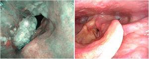 Imagen con luz blanca y con NBI de neoplasia de cuerda vocal derecha con afectación de la comisura.