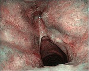 Imagen de cordectomía y resección de la comisura anterior con NBI (keyhole).