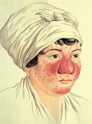 Ilustración clásica donde se representan los aspectos más característicos de la rosácea: eritema malar, pápulas y pústulas.
