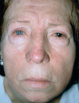 Rosácea ocular. Obsérvese la afectación conjuntival (blefaritis).