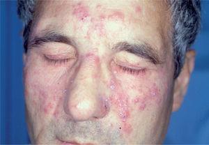 Rosácea pápulo-pustulosa grave antes del tratamiento con isotretinoína oral.