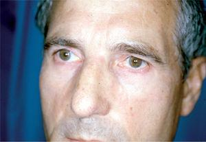 El mismo paciente de la figura 6 tras tratamiento.