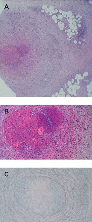 Imagen histológica del caso 8. A) Vena de gran tamaño en el tejido celular subcutáneo superficial con inflamación que se extiende hacia la grasa circundante compuesta por histiocitos y células gigantes (hematoxilina-eosina, ×100). B) Trombo organizado ocluyendo la luz vascular (hematoxilina-eosina, ×200). C) Tinción con orceína que muestra la ausencia de la lámina elástica interna (hematoxilina-eosina, ×200).