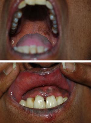 Mácula hiperpigmentada en la mucosa del paladar. Hiperpigmentación de la mucosa gingival.