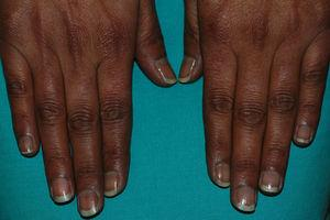 Hiperpigmentación ungueal y del dorso de las manos.