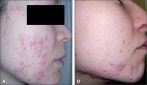 Acné persistente. Lesiones pápulo-nodulares en el tercio inferior de rostro y cuello.
