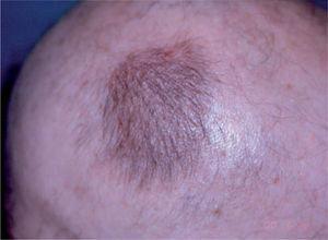 Repoblación de zona alopécica que ha sido tratada mediante infiltración con acetónido de triamcinolona.