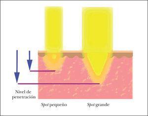 Representación de la relación entre el tamaño de spot y la capacidad de penetración en la piel para una misma longitud de onda determinada.