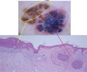 Infiltrado linfocitario en banda en la dermis papilar con escasos melanófagos.