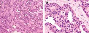 Hematoxilina-eosina. A. Típico tumor glómico con estructuras vasculares rodeadas de células glómicas (glomangioma) (× 40). B. Detalle de las células glómicas rodeando las estructuras vasculares (× 100).