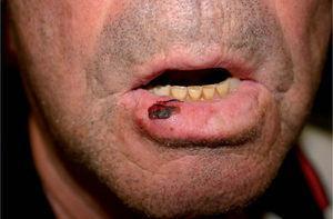 Queilitis actínica en el labio inferior del paciente 1.