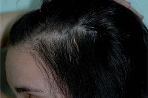 Resultado a los dos años del trasplante de pelo.