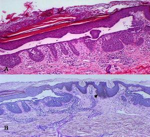 Hematoxilina-eosina, ×200: acantólisis suprabasal y zonas de paraqueratosis sobre las hendiduras epidérmicas (A). La técnica de PAS (Periodic acid-Schiff, ×400) muestra las crestas epidérmicas hiperplásicas y el incremento de melanina basal (flecha) (B).