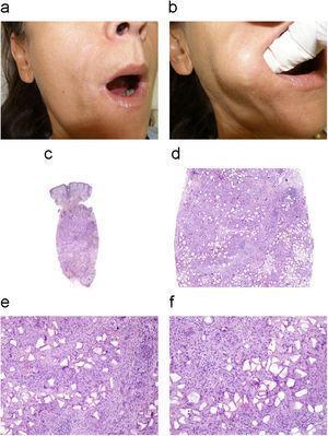 Paciente con reacción inflamatoria intensa secundaria a material de relleno permanente (a,b). La imagen histológica de hematoxilina-eosina revela una reacción granulomatosa con células gigantes de tipo cuerpo extraño en el tejido celular subcutáneo (H/E, 1,25×, 10×) (c,d). Se evidencia material de aspecto poligonal, compatible con depósito de Dermalive® (H/E, 20×, 40×) (e,f).