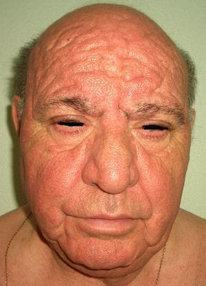 Frontofima, edema facial y engrosamiento palpebral.