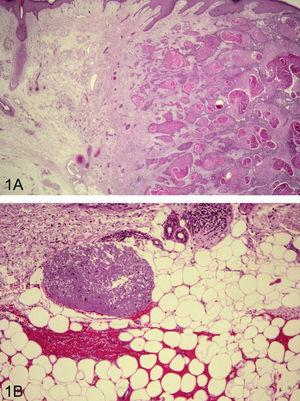 Intensa elastosis solar en la zona adyacente a carcinoma espinocelular; hematoxilina-eosina (H/E)×16 (A). Nido de elastosis solar en el tejido celular subcutáneo; HE ×200 (B).
