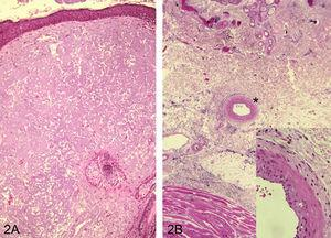 Elastosis solar que afecta toda la dermis en la zona adyacente a un carcinoma espinocelular. H/E ×100 (A). Elastosis solar que se extiende hasta dermis reticular profunda e incluso afecta la pared de una arteria (*), H/E x200 (B) (detalle en recuadro inferior, H/E ×400).