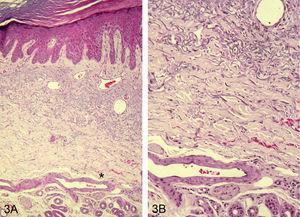 Elastosis solar en la dermis peritumoral, que incluso afecta las arteriolas (*); H/E ×100 (A). Detalle de elastosis solar en las paredes de la arteriola (levemente más intensa en la zona más cercana a epidermis, que recibe más radiaciones solares) H/E ×200 (B).