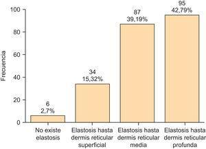 Elastosis solar observada en carcinomas espinocelulares.
