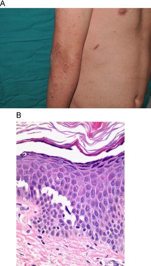 A) Lesiones erosivo-costrosas en la extremidad superior de un paciente con el síndrome de displasia ectodérmica-fragilidad cutánea. B) Imagen histológica de la misma enfermedad donde se aprecia acantólisis epidérmica suprabasal. (H&E 80x)