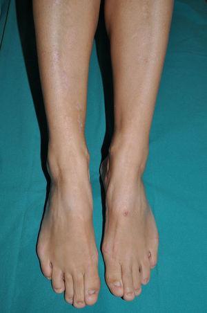 Epidermólisis ampollosa distrófica dominante. Afectación preferentemente ungueal y pequeñas cicatrices distróficas blanquecinas en ambas regiones pretibiales.