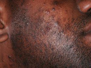Pseudofoliculitis de intensidad moderada en un paciente de raza negra.