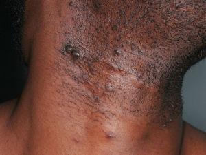 Pseudofoliculitis de intensidad moderada con lesiones hiperpigmentadas en un paciente de raza negra.