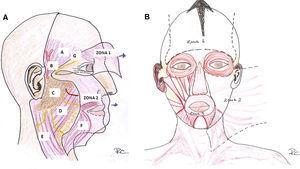Zonas del sistema musculoaponeurótico superficial. A (visión lateral) y B (visión frontal). En la figura 2 A el SMAS se ha levantado mostrando el plano profundo. Se observa cómo es algo discontínuo a nivel del cigoma. En la Zona 1 el SMAS envuelve al músculo frontal (visto por transparencia). A nivel de la sien la rama temporal del nervio facial discurre en el SMAS, siendo especialmente vulnerable a nivel del cigoma donde se encuentra debajo de la grasa subcutánea. En la Zona 2 las ramas del nervio facial (en amarillo) y el conducto parotídeo (en rojo) discurren profundas al SMAS y superficiales al músculo masetero y al cuerpo adiposo del carrillo. A: Fascia temporal (fascia profunda). B: Arteria temporal superficial. C: Glándula parótida. D: Músculo masetero y cuerpo adiposo del carrillo. E: Músculo esternocleidomastoideo. F: Músculo platisma. G: Rama temporal del nervio facial.