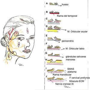 Planos por regiones anatómicas. A: Cuero cabelludo (plano subgaleal/ subSMAS). B: Sien (plano supraSMAS). C: Frente (plano subSMAS o subcutáneo). D: Periorbitario (plano preseptal o preorbicular) E: Sien (plano supraSMAS/subcutáneo). F: Labio cutáneo (plano supraorbicular). G: Labio mucoso (plano subglandular). H: Mejilla (plano subcutáneo). I: Zona mandibular (plano supraSMAS (subcutáneo). J: Cuello (plano supraSMAS (subcutáneo).