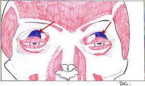 Esquema señalando el músculo elevador del párpado superior (en azul) mediante flechas rojas.