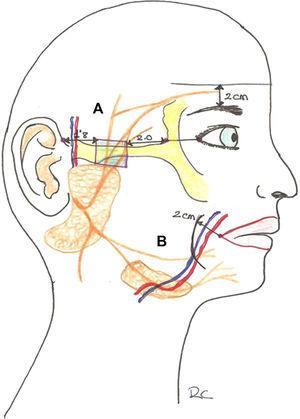A. Punto crítico y localización de la rama temporal del facial. B: Punto crítico y localización de la rama marginal mandibular del facial.
