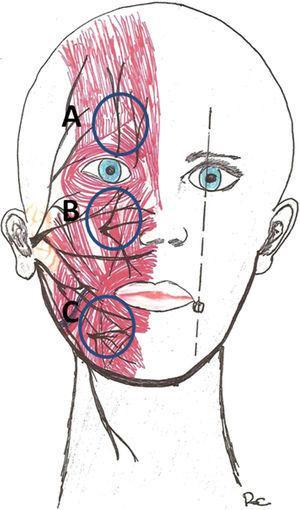 Puntos críticos de las ramas nerviosas sensoriales. A: Ramas supraorbitaria y supratroclear (ramas de la oftálmica V1). B: Rama infraorbitaria (V2). C: Nervio mentoniano (V3).