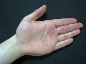 Lesión en mano en el paciente del caso 2.