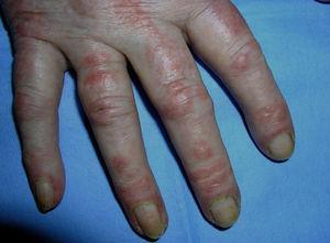 Pápulas de Gottron sobre las articulaciones interfalángicas en una paciente con dermatomiositis.